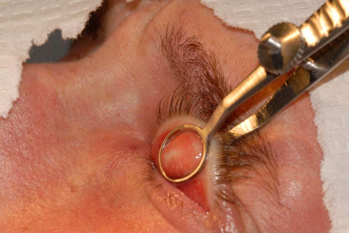 Операция на халязион