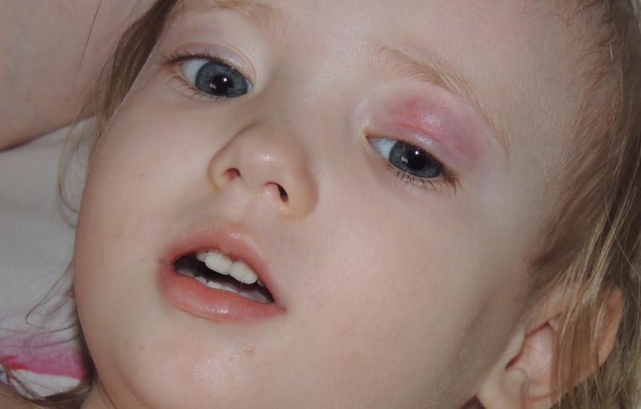 Халязионы век Лечение у ребенка