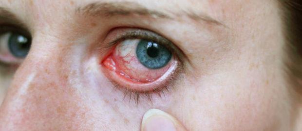 Причины и симптомы вирусного конъюнктивита глаз