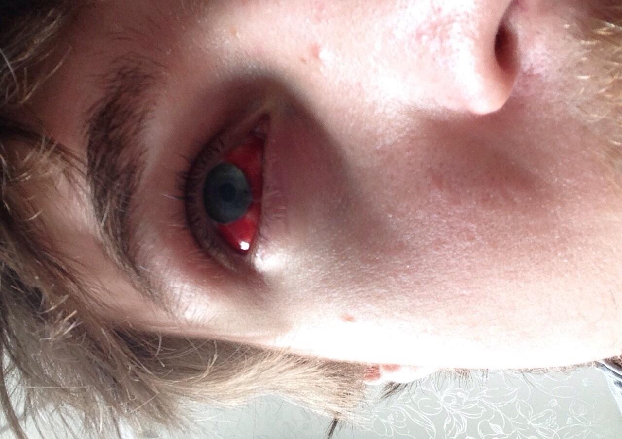 «Кровоточащий» глаз всегда выглядит пугающе неэстетично