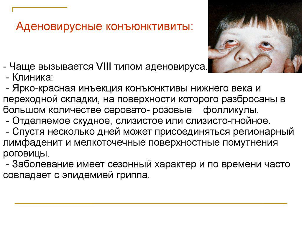 Аденовирусные конъюнктивиты