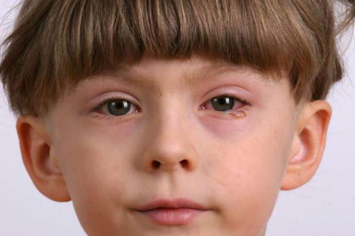Аллергический конъюнктивит может быть сезонным и хроническим