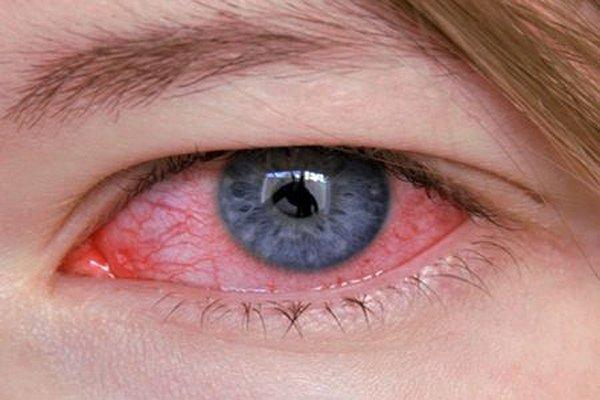 Аллергоконъюнктивит