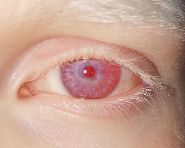 Альбинос с красными глазами