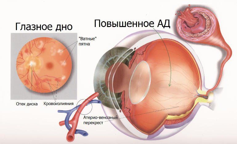 Болезни сетчатки глаза и их лечение в Москве