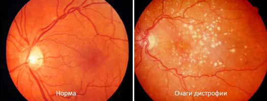 Атрофия сетчатки при осмотре глазного дна