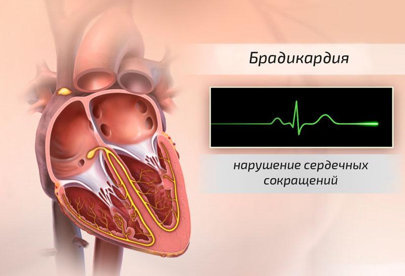 Брадикардия - нарушение сердечных сокращений