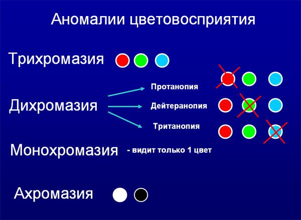 Виды аномалий цветовосприятия