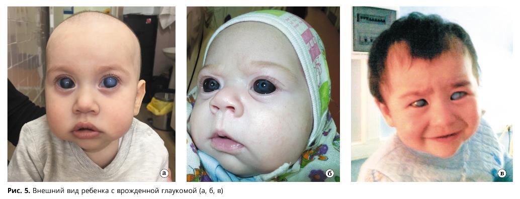 Внешний вид ребенка с врожденной глаукомой