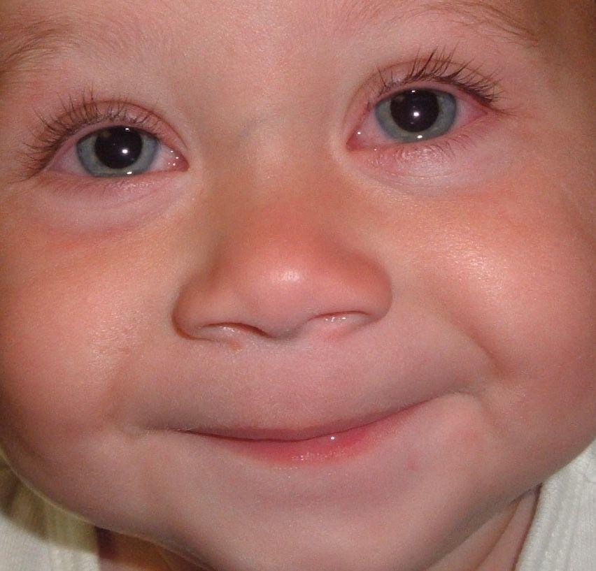 Возможные причины покраснения глаз у ребенка