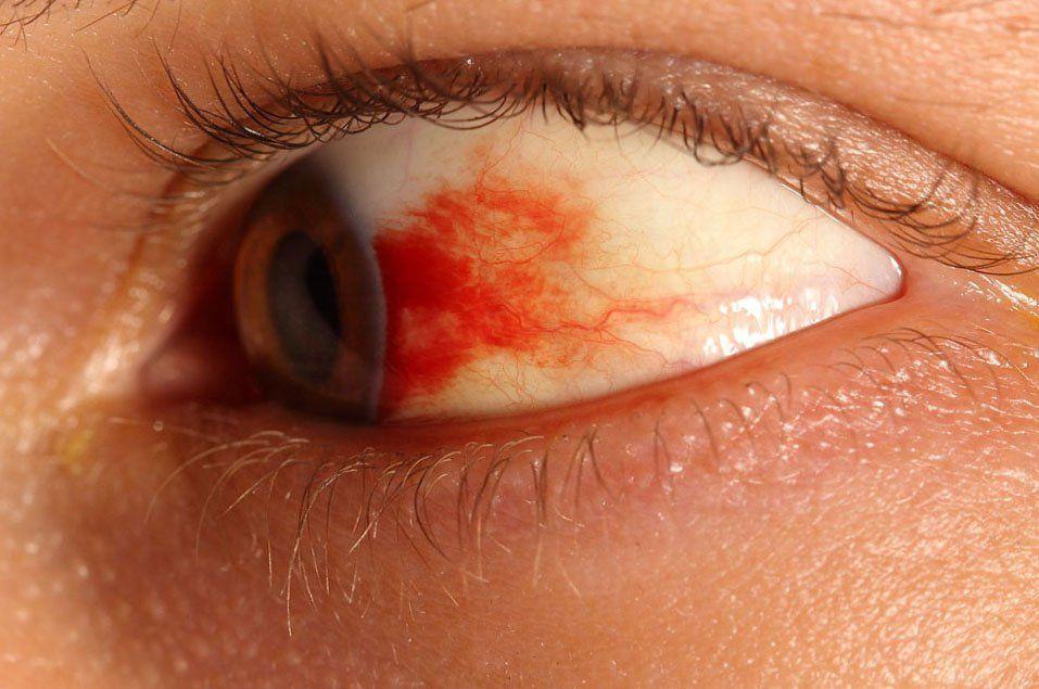 Глаза могут краснеть при высокой температуре