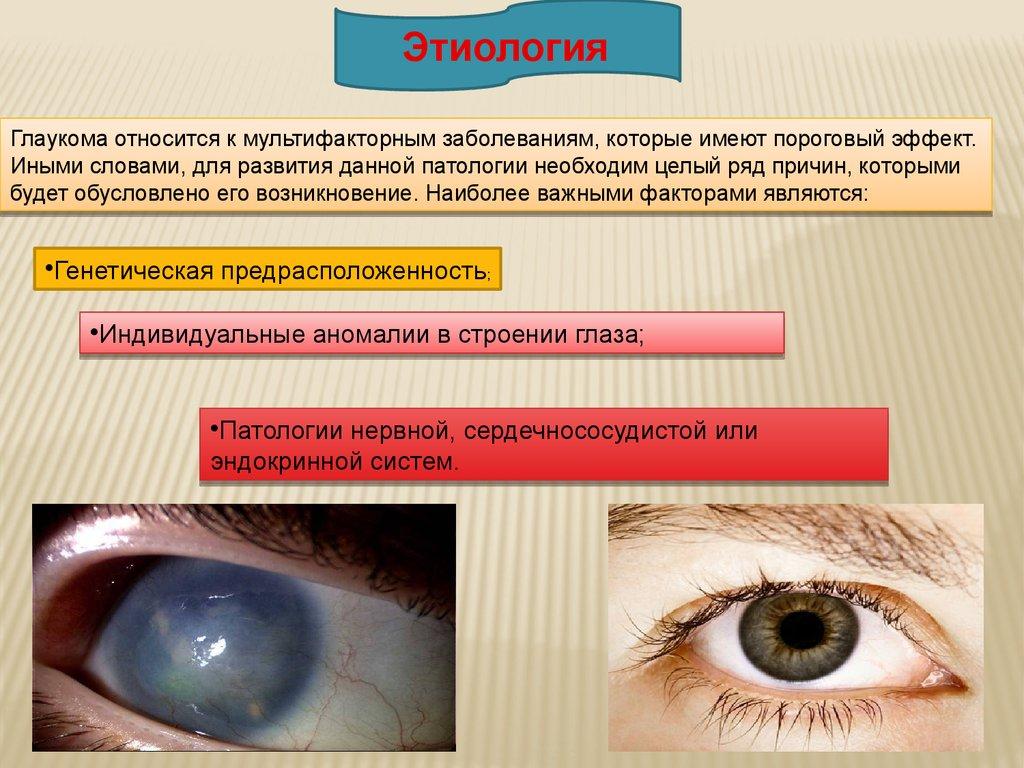 Глаукома относится относится кк мультифакторным мультифакторным заболеваниям