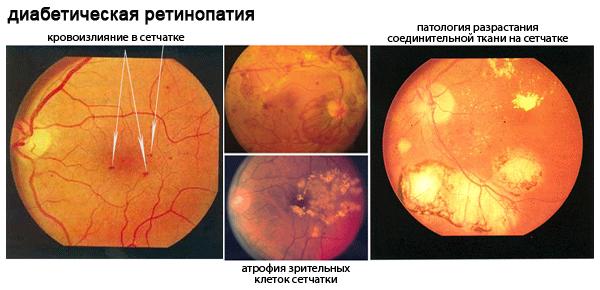Диабетическая ретинопатия - симптомы