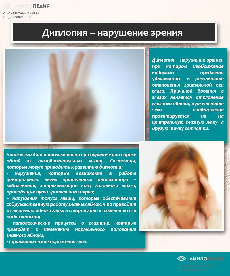 Диплопия – нарушение зрения