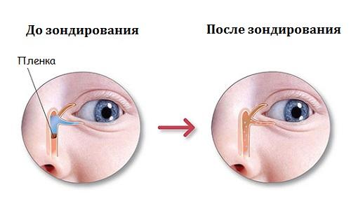 До и после зондирования
