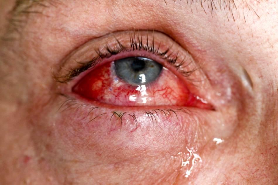 Есть разные виды глазных кровоизлияний