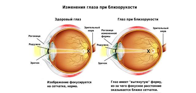 Изменения глаза при близорукости