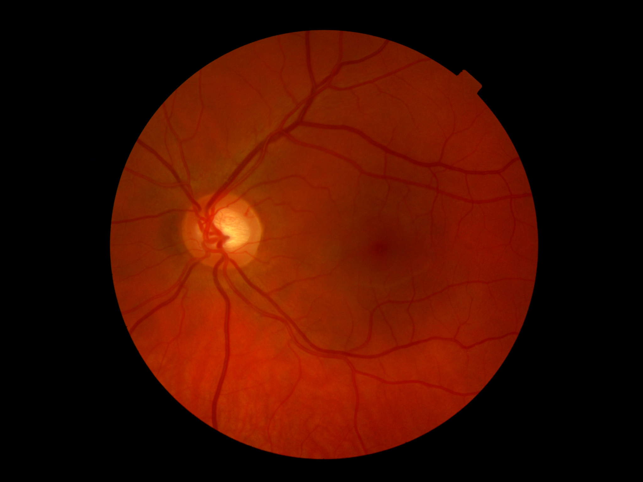 Исследование глазного дна
