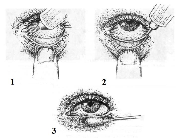 Как закладывать мазь для глаз