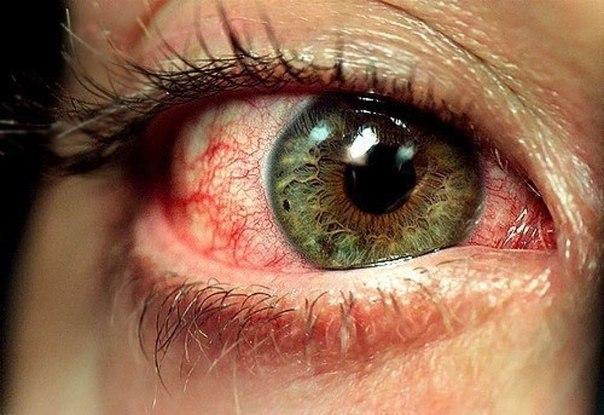 глазные капли при гнойном конъюнктивите у взрослых