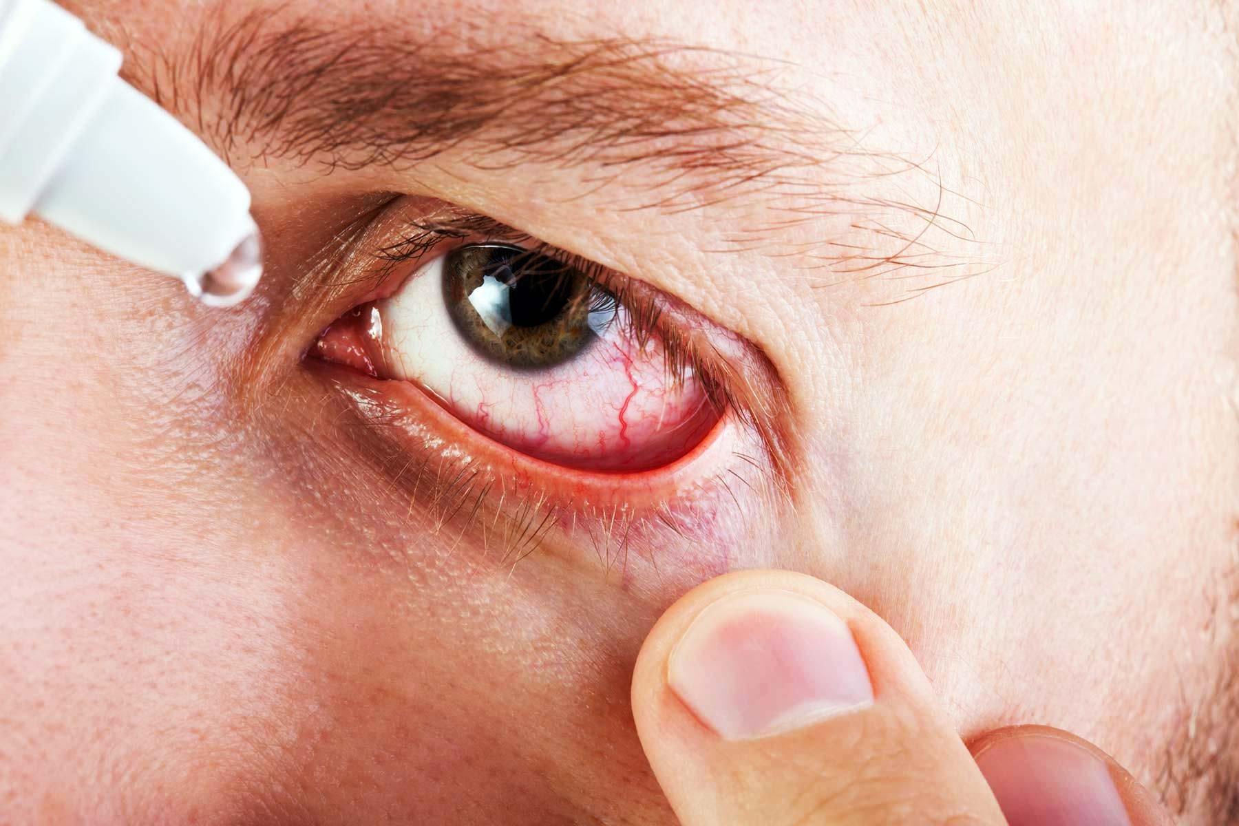 Капли глазные антибактериальные и противовоспалительные