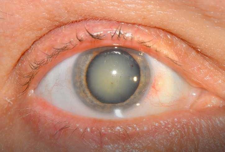 Катаракта - помутнение хрусталика глаза, является противопоказанием