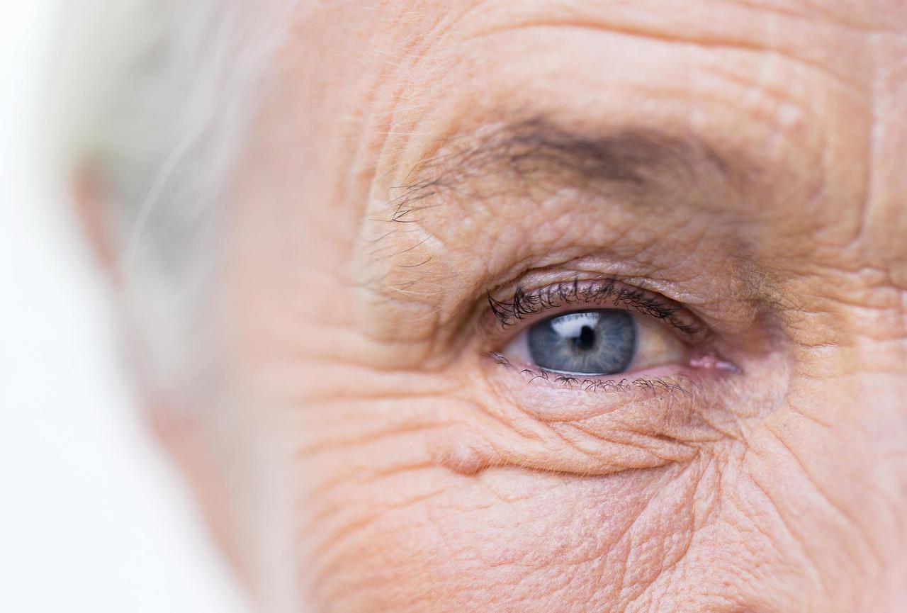Катаракта – это наиболее важная предотвратимая причина слепоты в мире