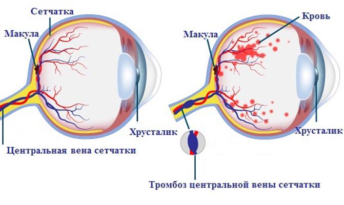Классификация тромбоза вены сетчатки