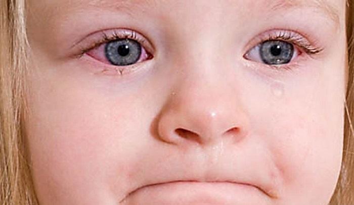 Конъюнктивит аллергический