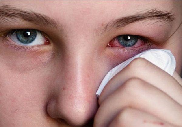 % D0% 9A% D0% BE% D0% BD% D1% 8A% D1% 8E% D0% BD% D0% BA% D1% 82% D0% B8% D0% B2% D0% B8% D1% 82 1 - Explosión vascular en los ojos de la causa, solución al problema y prevención del tratamiento.