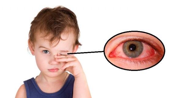 Краснота глаз без гноя