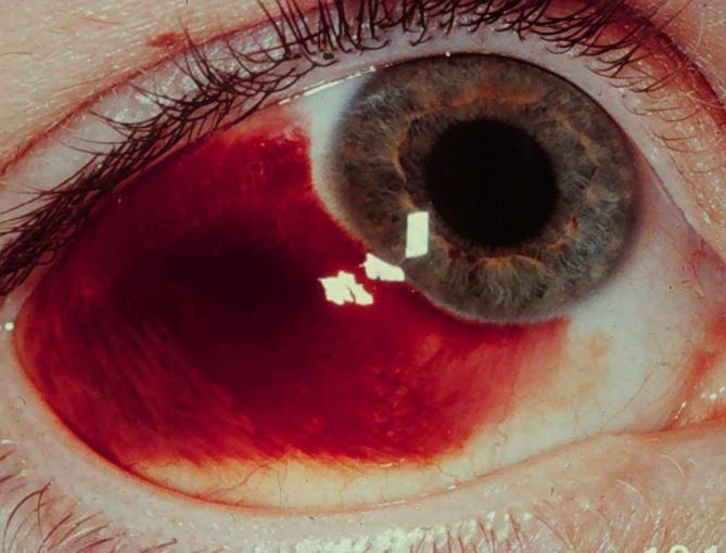 Красный глаз, лопнул сосуд - что делать