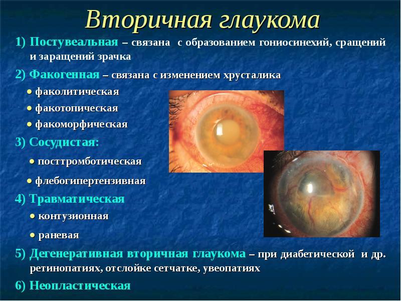 Краткое описание видов вторичной формы глаукомы