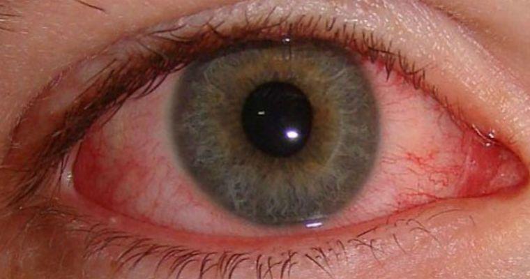 Кровоизлияния на глазу при ожоге