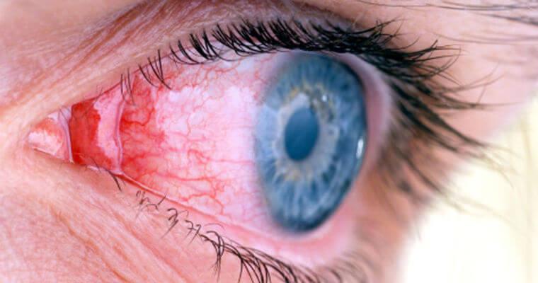 Левомицетин может повлиять на качество зрения