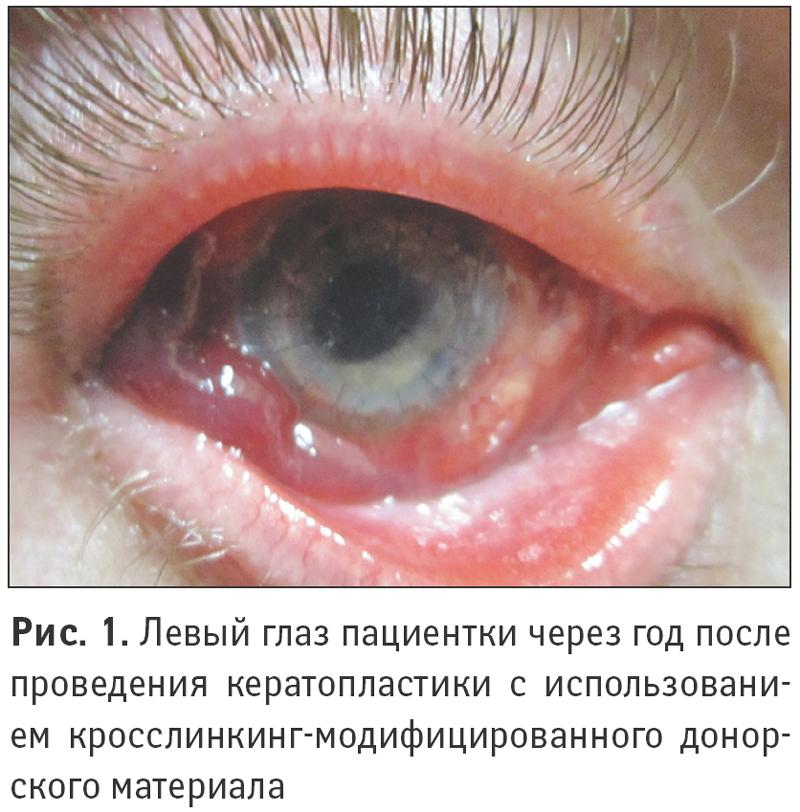 Левый глаз пациентки через год после проведения кератопластики