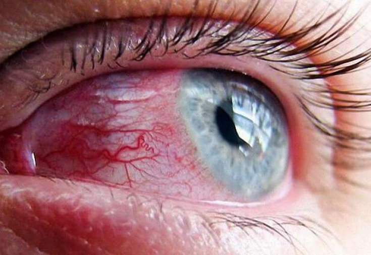 % D0% 9B% D0% BE% D0% BF% D0% BD% D1% 83% D0% BB% D1% 81% D0% BE% D1% 81% D1% 83% D0% B4% D0% B2% D0 % B3% D0% BB% D0% B0% D0% B7% D1% 83 - Explosión vascular en los ojos de la causa, solución al problema y prevención del tratamiento