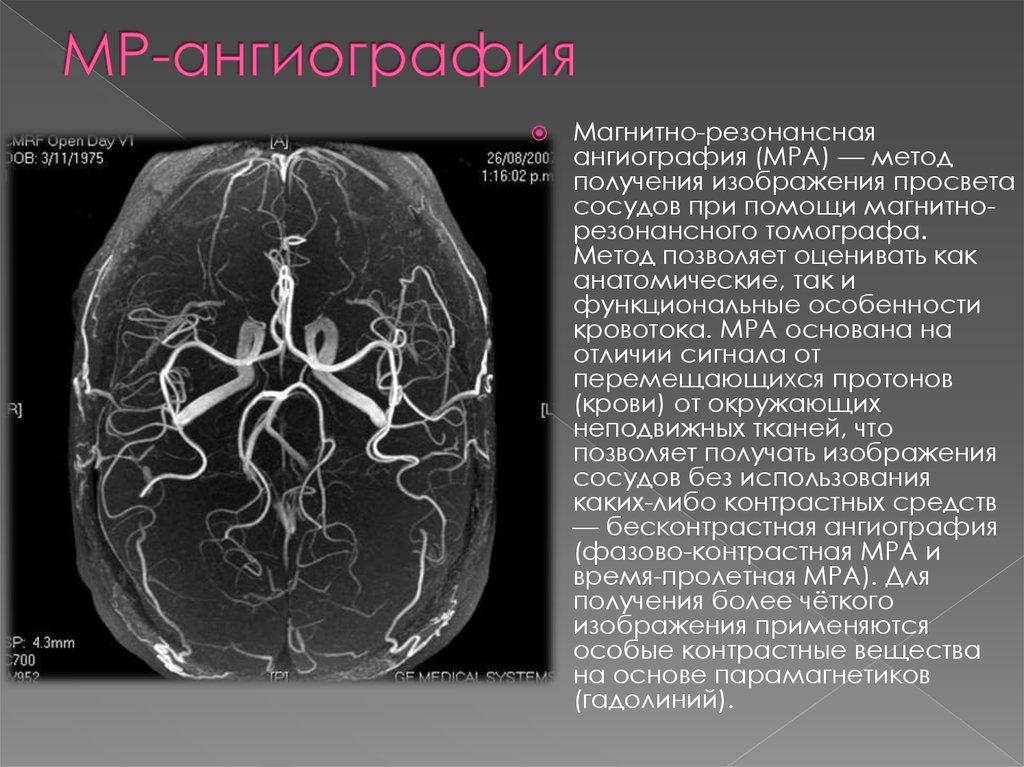 МР-ангиография