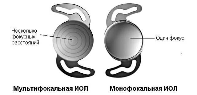 Мультифокальная и монофокальная линзы