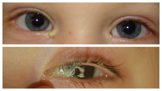 Нагноение глаз у грудничка