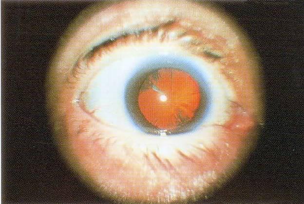 Незрелая кортикальная катаракта