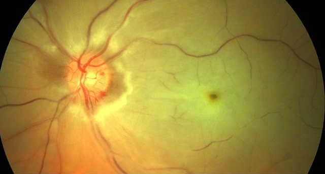 Непроходимость центральной артерии сетчатки