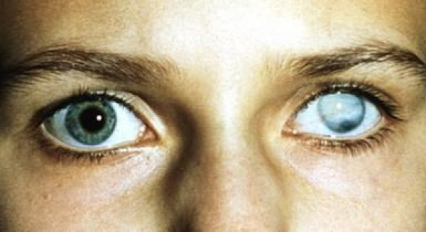 Не всегда можно восстановить зрение