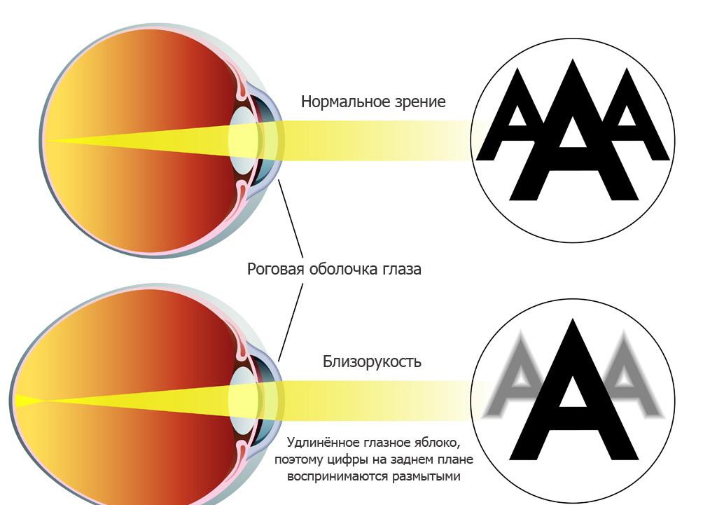 Нормальное зрение и близорукость