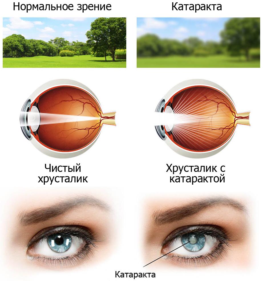Нормальное зрение и зрение при катаракте