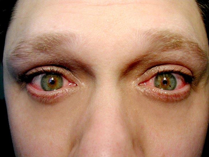 Одним из признаков блефароконъюнктивита является покраснение глаз