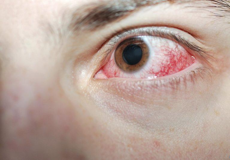 Ожог глаз от сварки