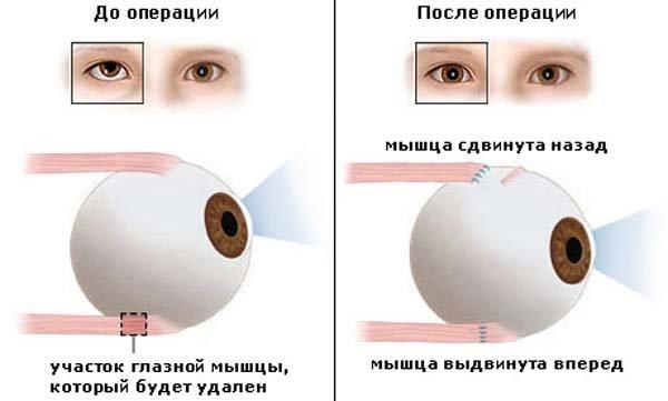 Схема операции по укорочению глазной мышцы