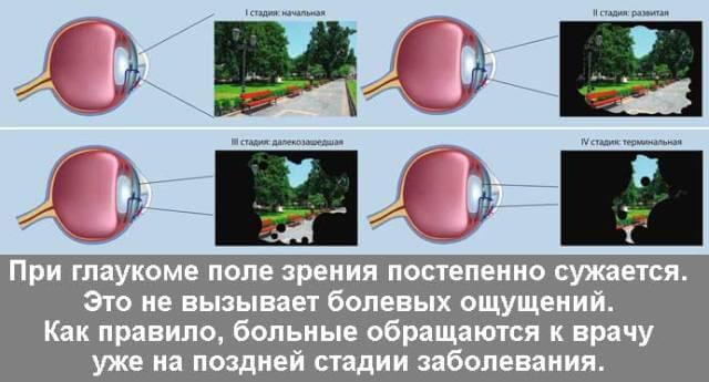 Основная причина потери зрения при глаукоме