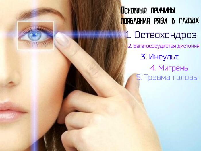 Основные причины появления ряби в глазах